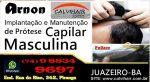 Calvihair Sistem- Implantação e Manutenção de Prótese Capilar Masculina em Juazeiro - Ba
