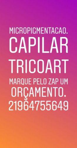 Micropigmentação Capilar Ouse Seja Feliz Sempre se livre da Calvície conheça Microcapilartricoart 21964755649 515779